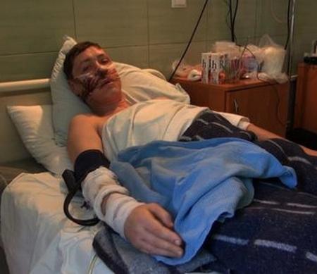 Op 30 januari stierven in Donetsk zes mensen toen een mortier een rij mensen trof, wachtend op humanitaire hulp. De 42 jarige Sergei Maydan verloor door zijn verwondingen veel bloed