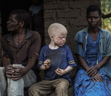 Albinojongen met zijn ouders © GIANLUIGI GUERCIA/AFP/Getty Images