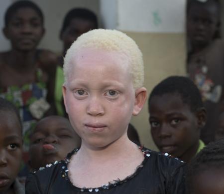 Albinisme in Malawi